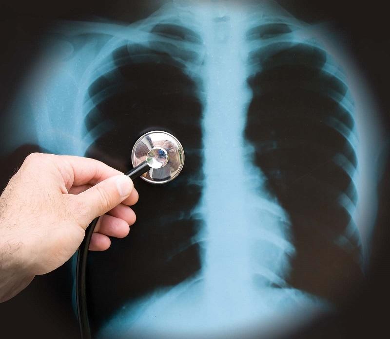plaučių rentgeno nuotrauka esant hipertenzijai hipertenzija deguonis