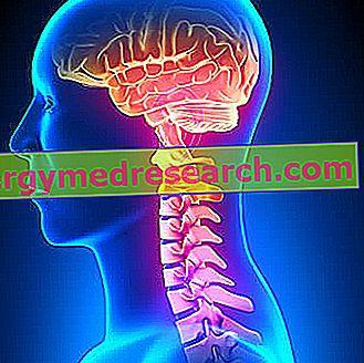 Fibroraumeninė displazija (I ) - Sveikas Žmogus
