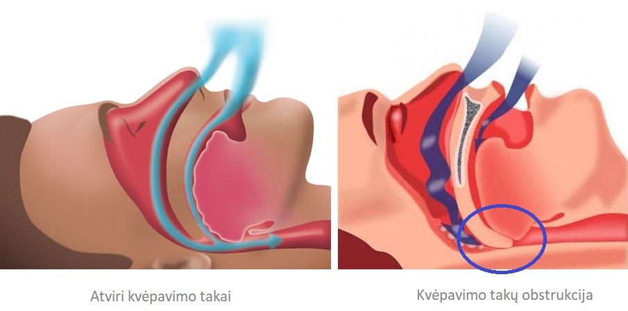 slėgio miego hipertenzija tinkamumo hipertenzijai kategorija