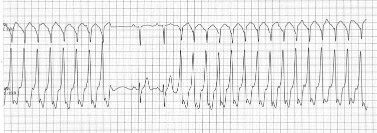 tachikardija kaip hipertenzijos simptomas