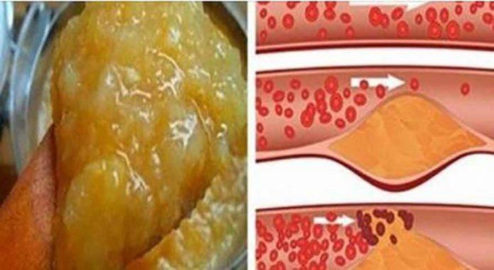 vaistams nuo hipertenzijos nuo cholesterolio