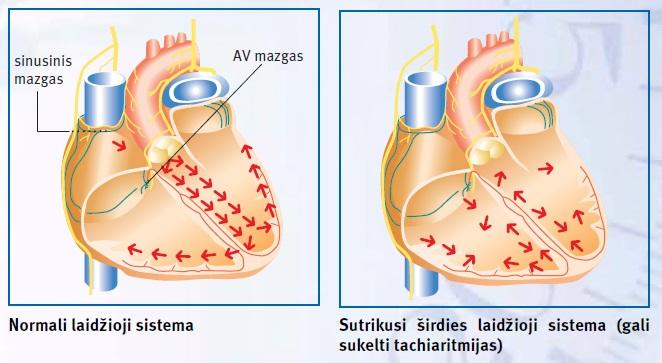 aspektas sveikatos širdies skilvelis)