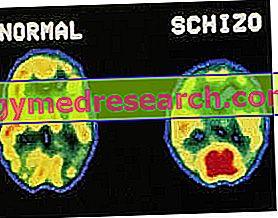 šizofrenija ir hipertenzija