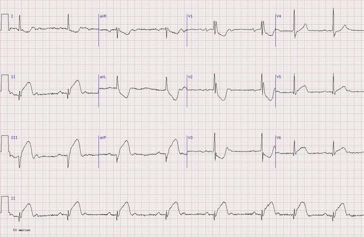 Kairioji skilvelio širdies hipertrofija: kas tai, simptomai, gydymas