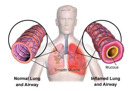 hipertenzija ir lėtinis bronchitas