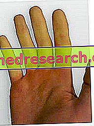 Sklerodermija - formos, simptomai (dėmės), nuotrauka, gydymas ir vaistai