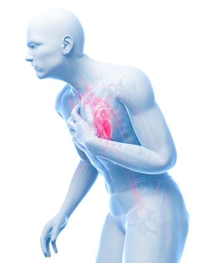 kaip numesti svorio sergant krūtinės angina ir hipertenzija