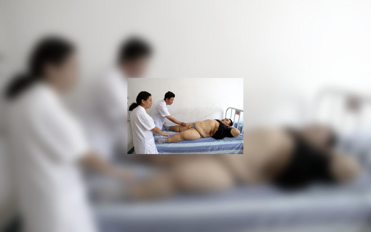 alternatyvus hipertenzijos su osteochondroze gydymas