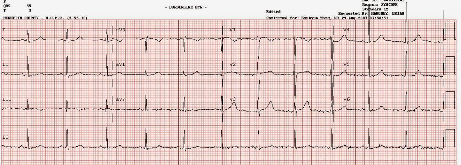 ar EKG rodo hipertenziją kokie vaistai gydo hipertenziją