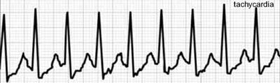 tachikardija ir hipertenzija, kokius vaistus vartoti)