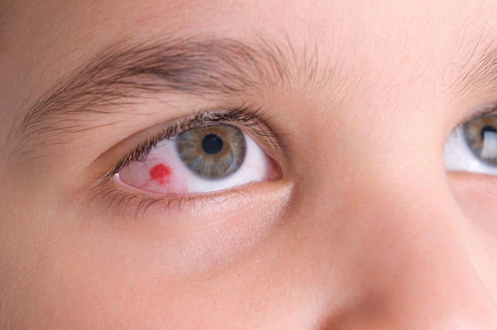 akių paraudimas su hipertenzija