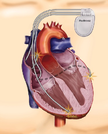 Kai širdis nebedirba efektyviai: kas tai sukelia ir kaip išvengti pasekmių