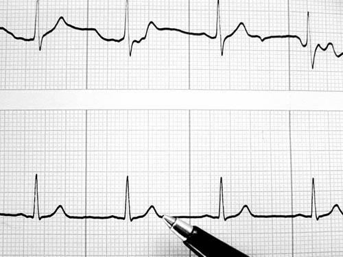 pulsas yra normali hipertenzija