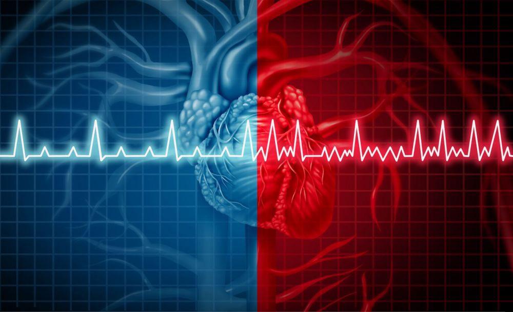 kas yra teisinga prieširdžių hipertenzija