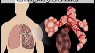 adatos hipertenzijai gydyti