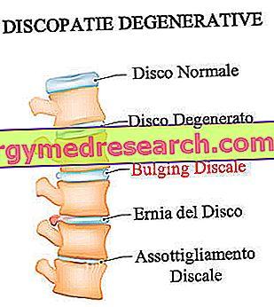 hipertenzijos gydymas disku