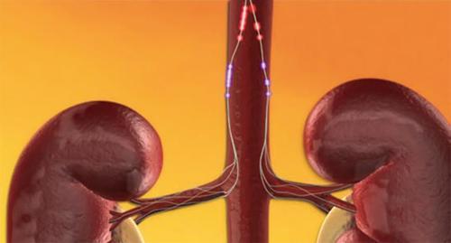 inkstų arterijų denervacija gydant hipertenziją