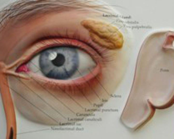 akių patinimas su hipertenzija)