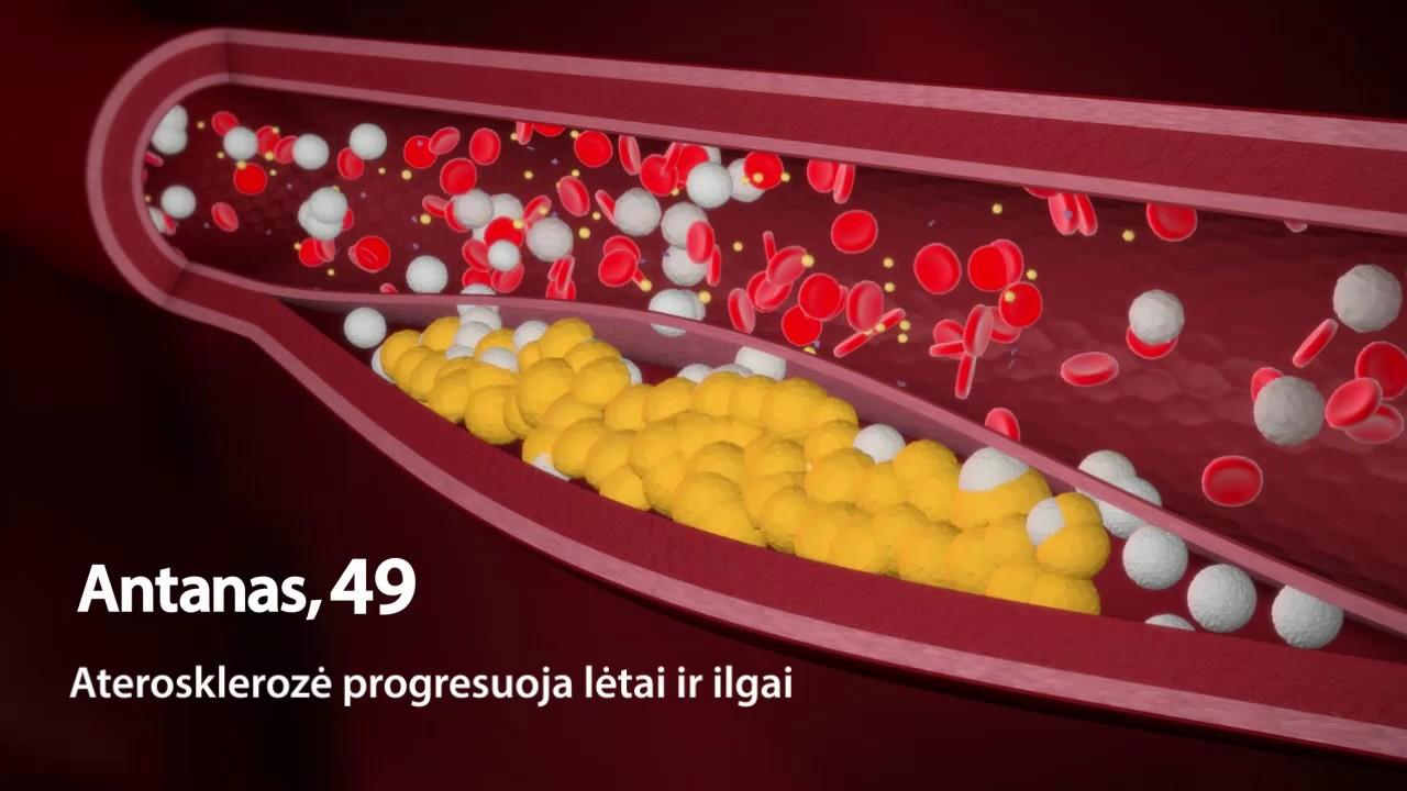 lėtinė hipertenzija 2 laipsniai