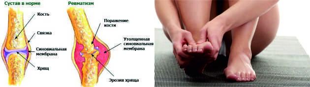 hipertenzija patinančios kojos)