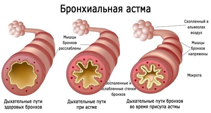 druskos urvai ir hipertenzija)