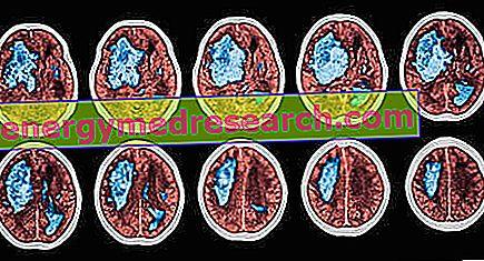 Insultas: aprašymas ir pagalbos principai - Hipertenzija November