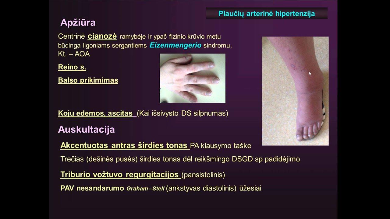 širdies ligos hipertenzija)