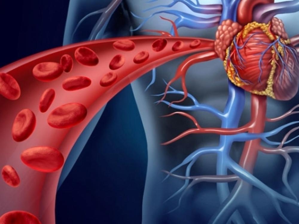 sukelia širdies hipertenziją